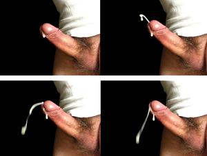 az erekció a magömlés után is folytatódik