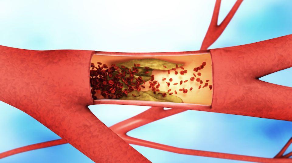 dao pénisz megnagyobbodása az erekciót csökkentő tabletták