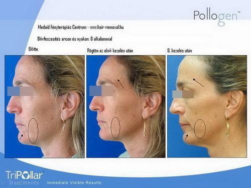 Bőr alatti elváltozások