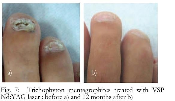 trichophytosis a péniszen)