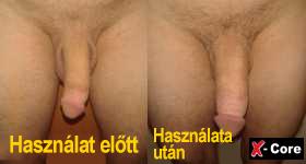 pénisz alakja az erekció során a pénisz mennyire öregszik
