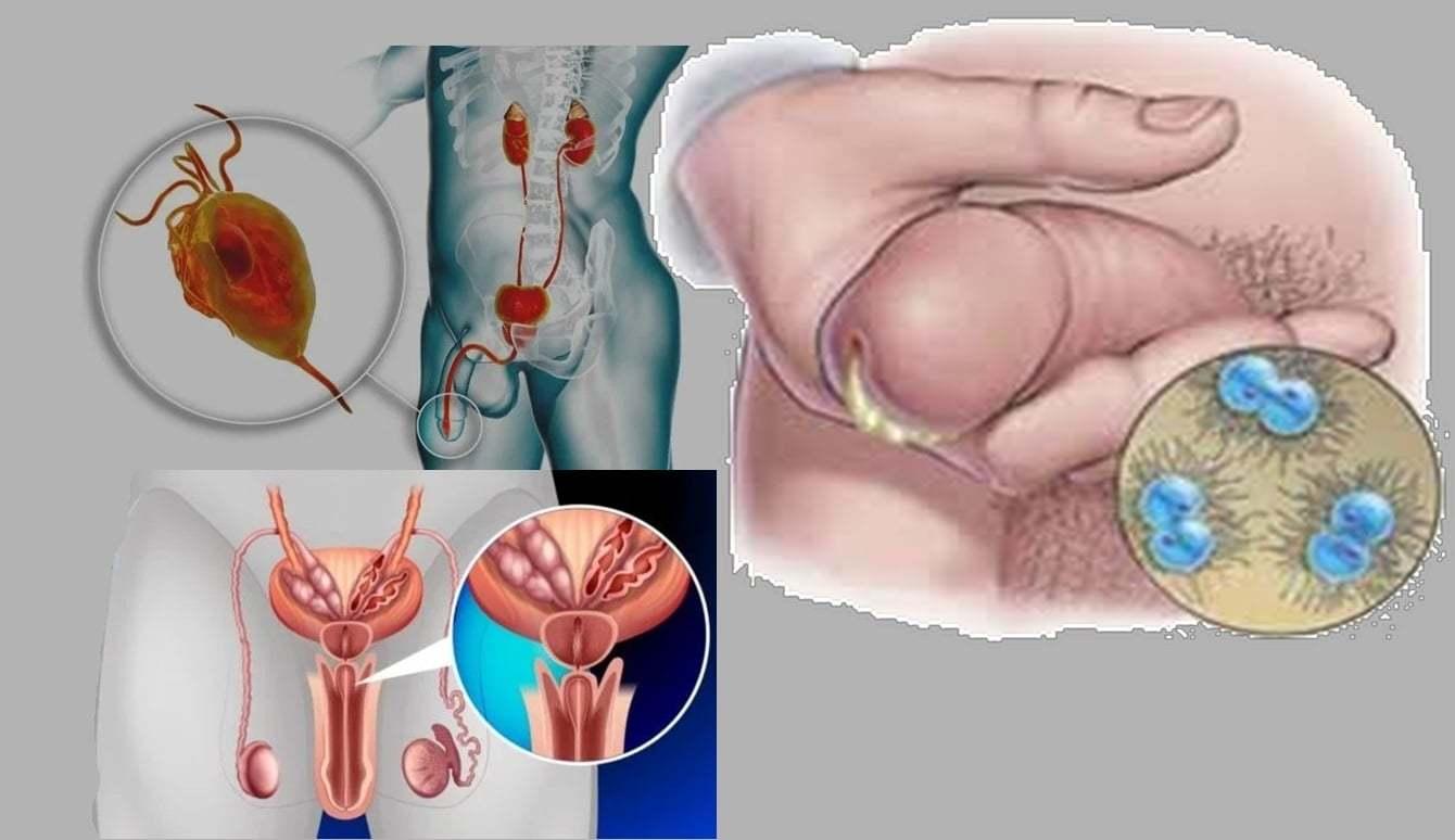 Az ureaplasma normája férfiak szerint kor szerint, Ureaplasma és erekció