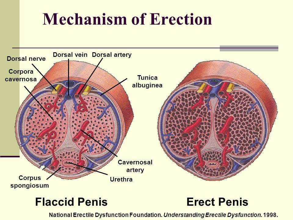 erekció menü)