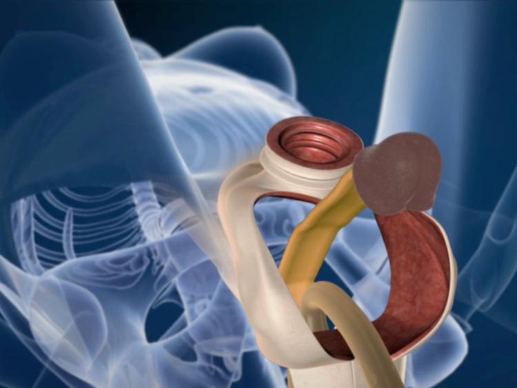 Összefüggést találtak a pénisz formája és a rákkockázat között | hu