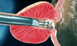 A műtét után prosztata adenoma gyakori vizelés - Hidronefrózis -