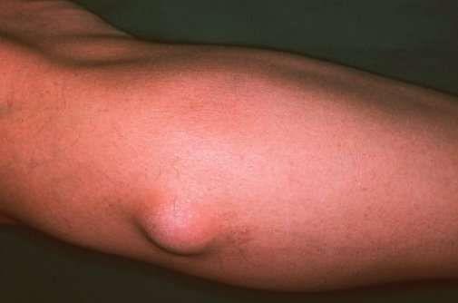 a test felállítása gyenge erekció rövid távon
