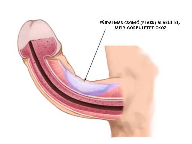 a pénisz és a petesejtek megnagyobbodása