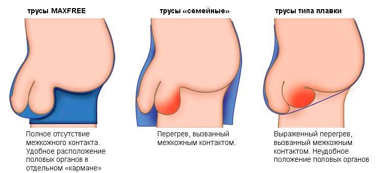 amikor a pénisz puha)