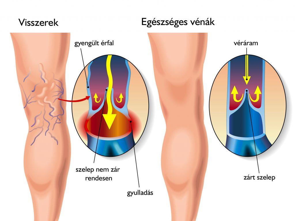 pénisz megnagyobbodása egy hét alatt