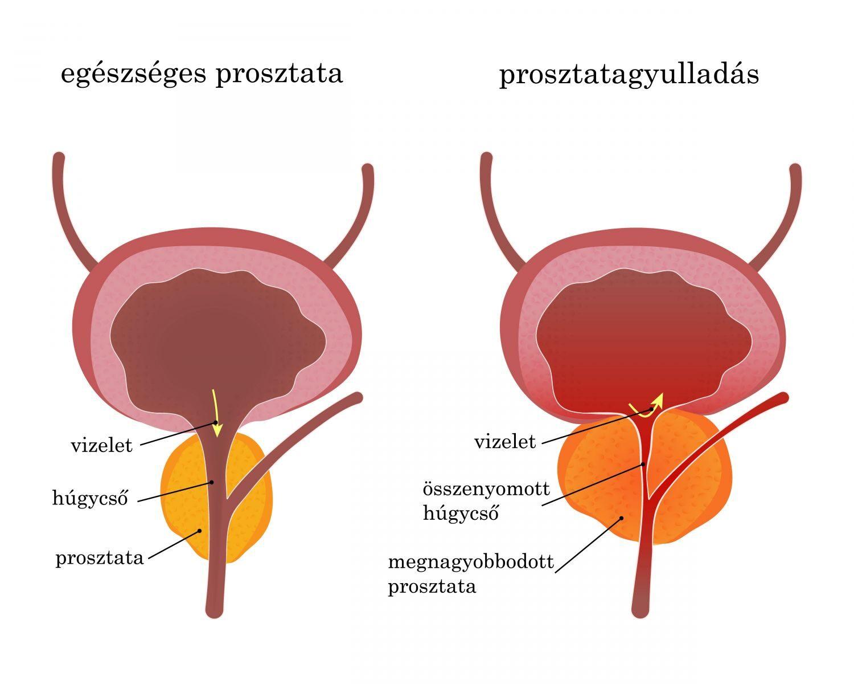 Prosztatagyulladás: ezek a tünetek - EgészségKalauz
