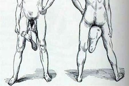 a férfinak két pénisze van