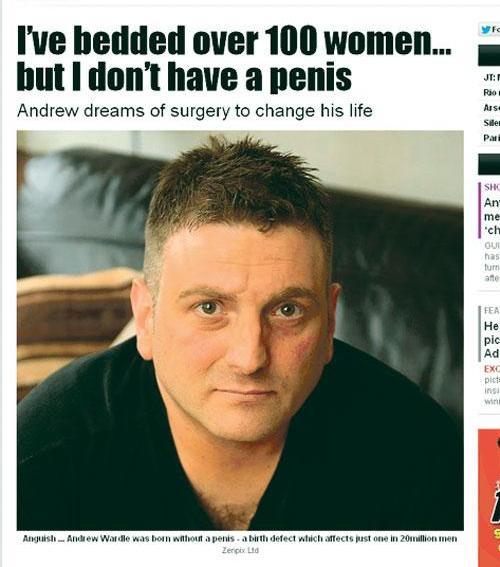 Így lesz péniszből vagina a műtőasztalon - videóval