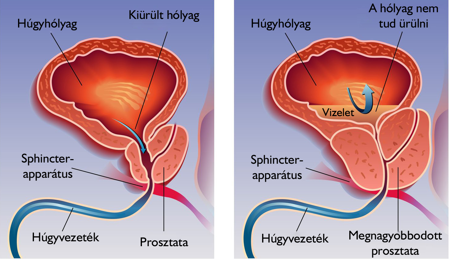 prosztata betegségek és erekció a pénisz kisebbnek tűnik