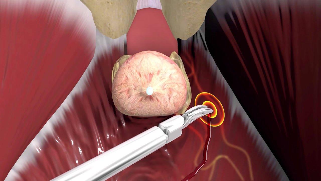erekciós problémák a prosztatagyulladás kezelése után