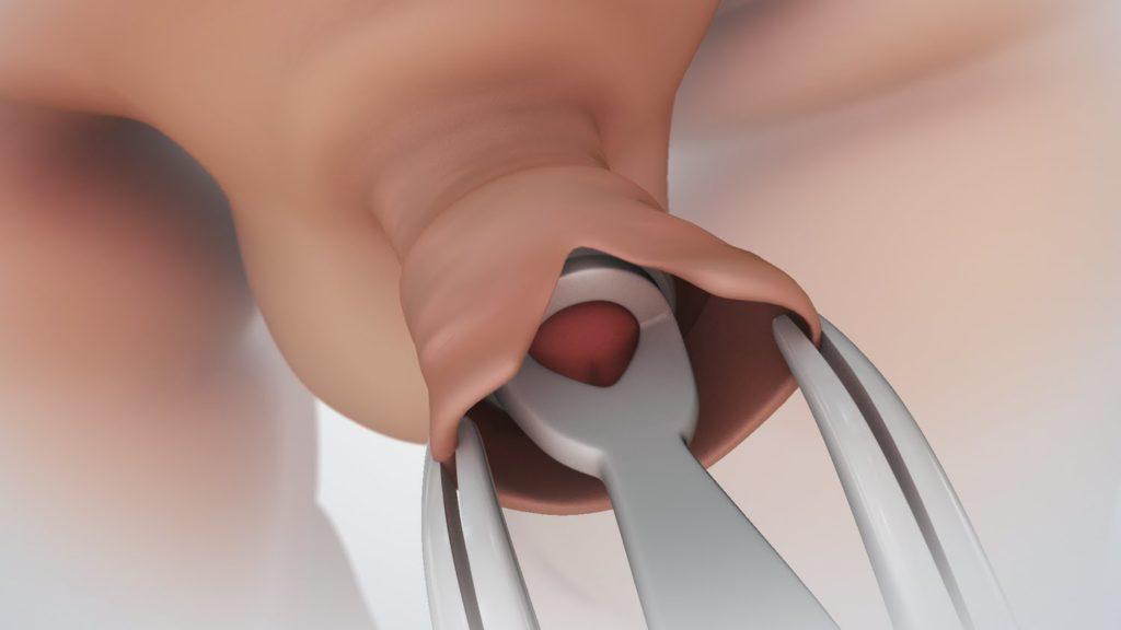 orvos ellenőrzi a péniszt