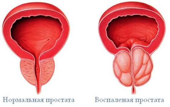 a prosztatagyulladás jelei, tünetei és az erekció)