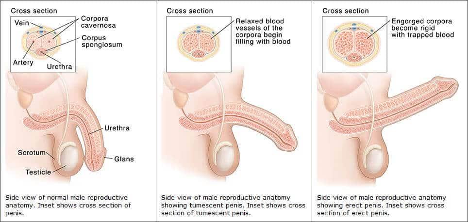 az erekció hiánya a műtét után