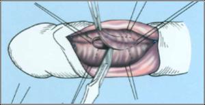 a pénisz görbülete miért