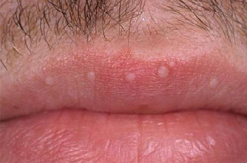 a pénisz szájgyulladása
