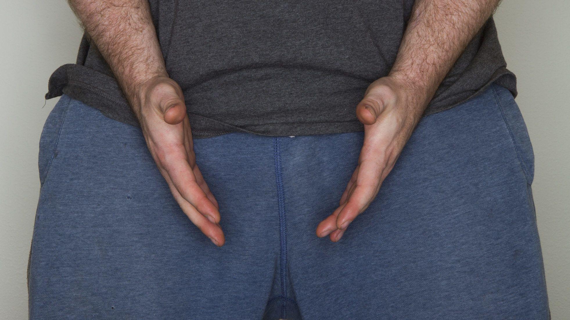 a pénisz túl hosszú