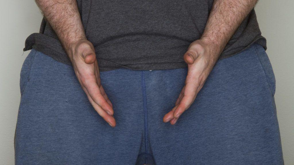 mit kell tenni, ha a pénisz megduzzadt