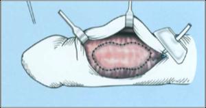 hím korú pénisz péniszvastagító műtét