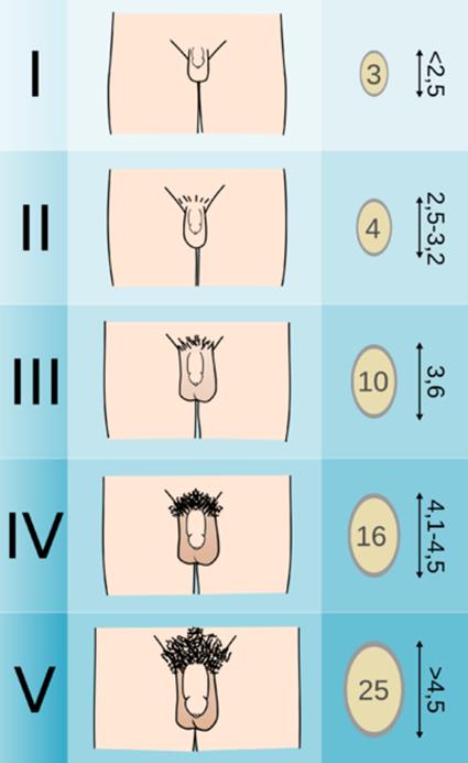 a pénisz alakjának különbségei