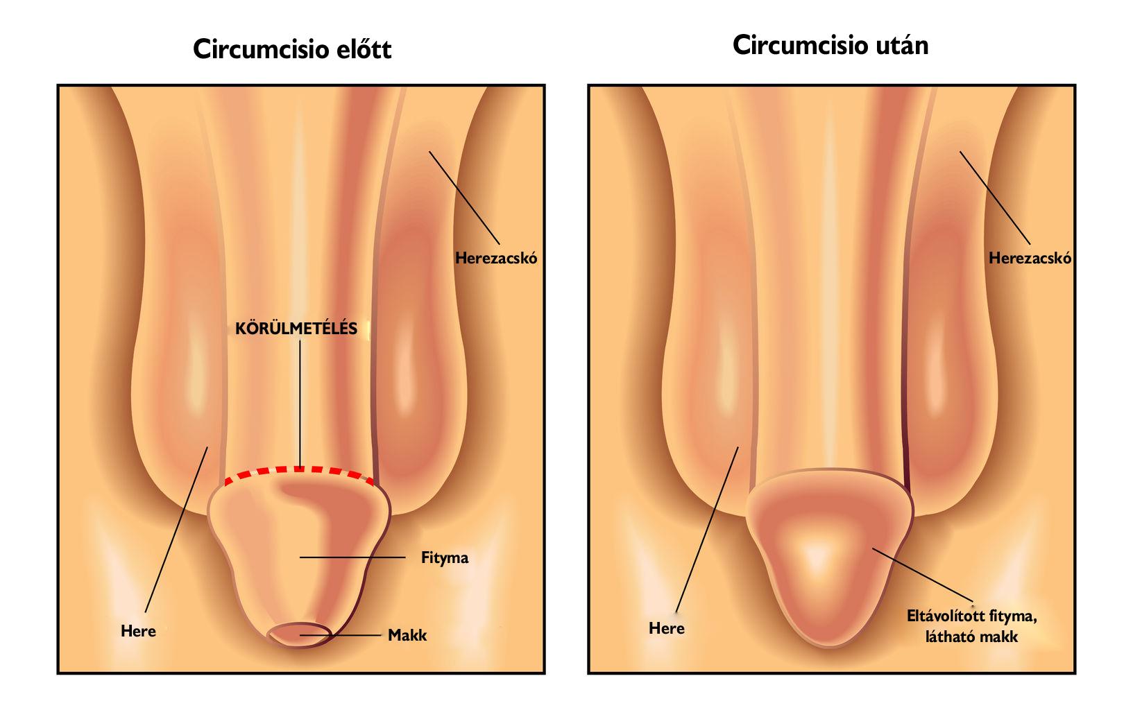pénisz előtt és után