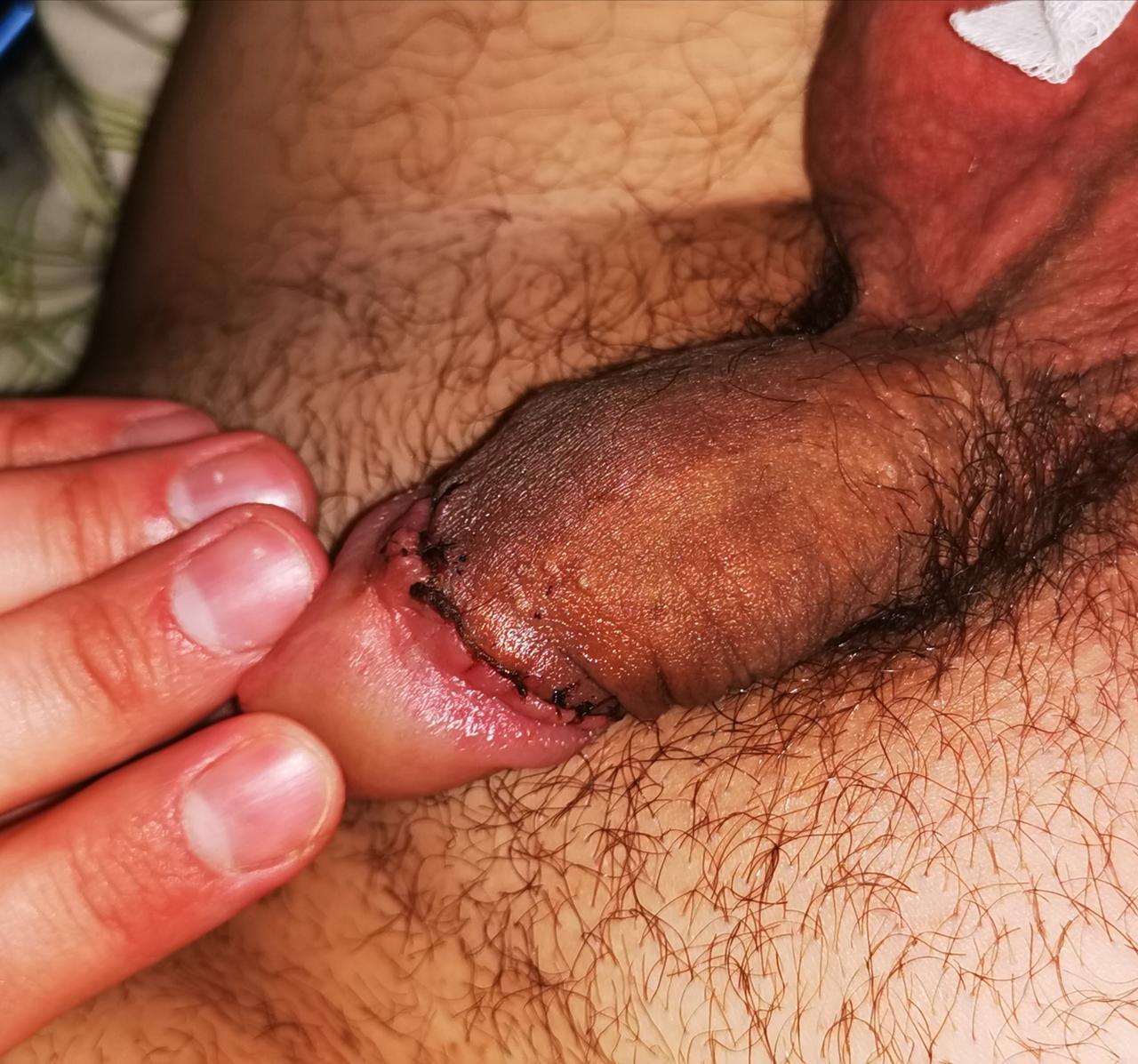 közösülés után a pénisz leesik