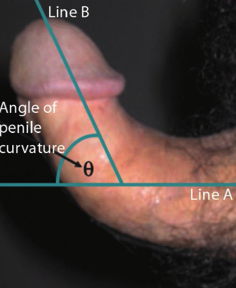 krémet a pénisz bekenésére