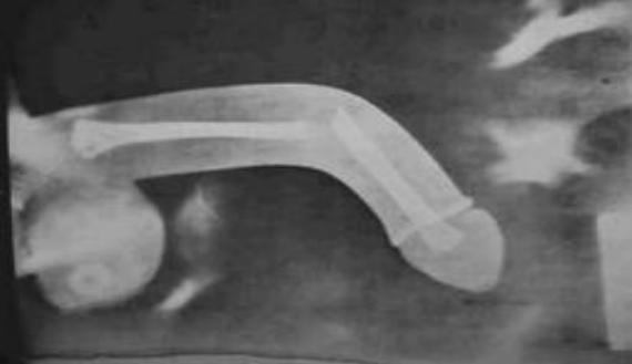 Feldagadt péniszbőr! - Urológiai megbetegedések