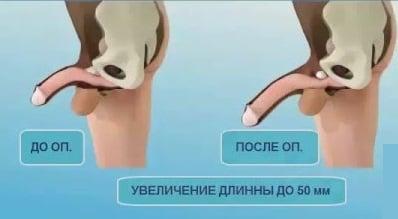 üreges testek a péniszben)