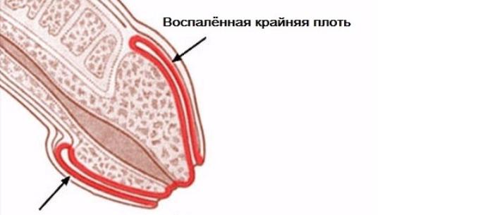 vörös foltok a fején az erekció során)