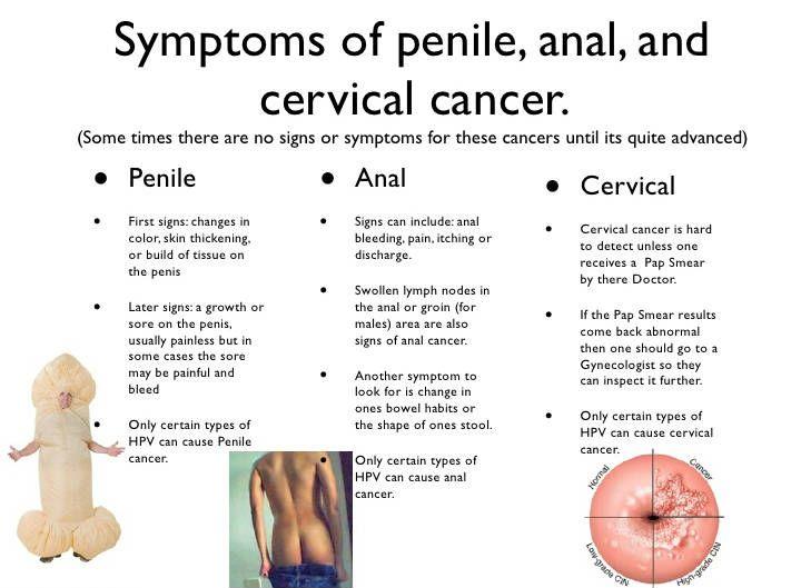 szóda pénisz kezelése