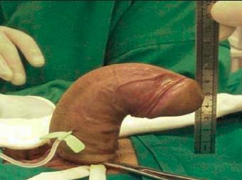 égés a péniszben lévő erekció után hogyan kell használni a pénisz ujjait