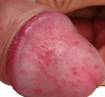 duzzadt pénisz vér a férfiaknál erekció során