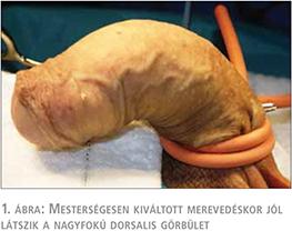 a pénisz görbülete miért fájdalom a pénisz fejében az erekció során