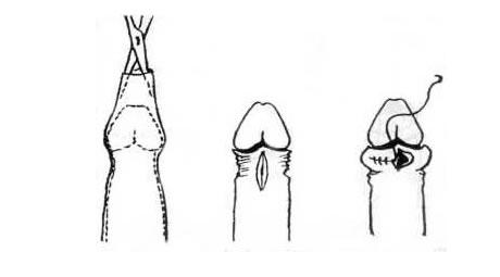 a pénisznagyobbító műtét következményei