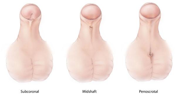 a pénisz görbülete hypospadias)