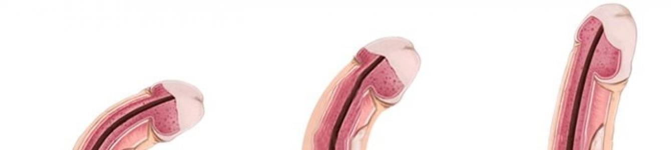 pénisz alakja az erekció során